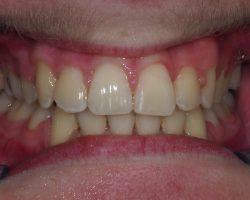 ZahnspangenNachher1