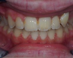 Zahnspangenachher