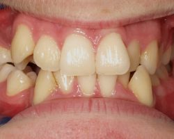ZahnspangevVorher1