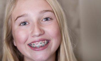 Kinder- und Jugend Zahnspangen
